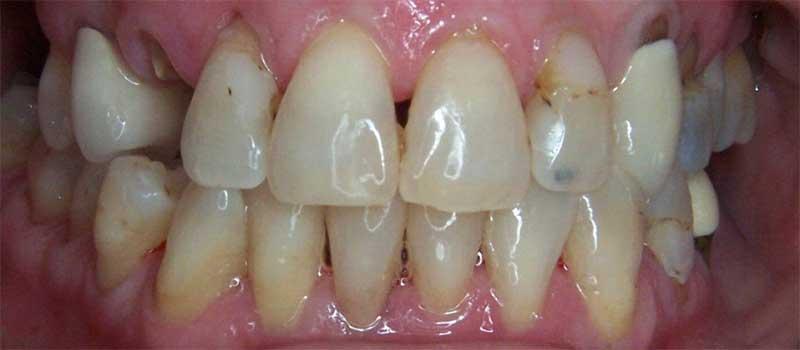CEREC Dental Crown Before