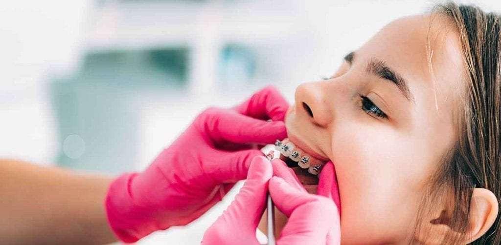 Dental Braces Guelph - Sunset Dental Centre