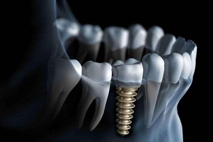 Dental Implants Guelph
